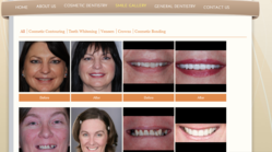 The dental work performed by Dr. D'Alfonso of the Lakeway Center for Cosmetic and Family Dentistry, a practice of Austin cosmetic dentists